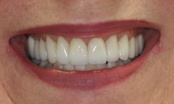 teeth whitening treatments by Dr. Angela Courtney