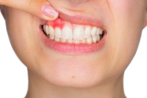 woman with gums exposed pink spot