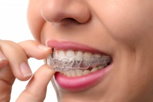 woman smiling while inserting invisalign tray