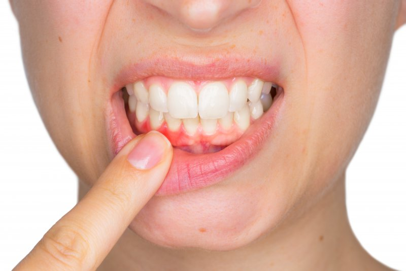 woman showing pink spot on gums