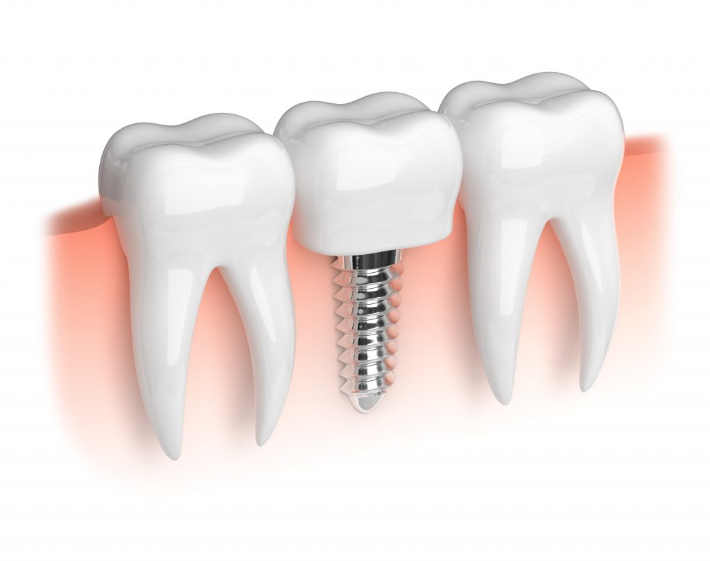Dental Implant With Normal Teeth
