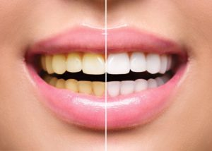 Discolored smile before and after visiting Upper Arlington dentist