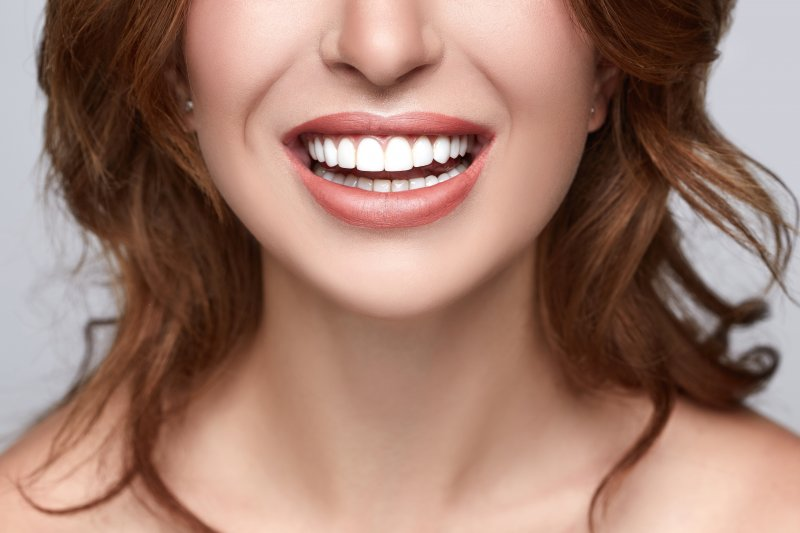 Woman after teeth whitening in Upper Arlington